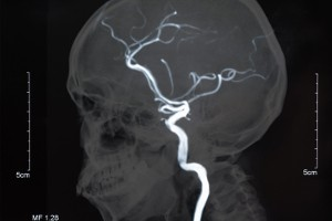 neurosurgery via blood vessels