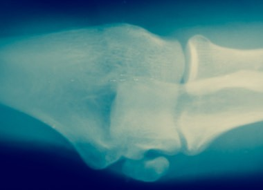 x-ray image of a bone