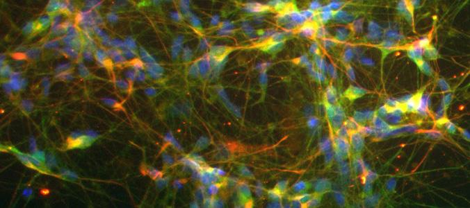 Jefferson Stem Cell & Regenerative Neuroscience Center